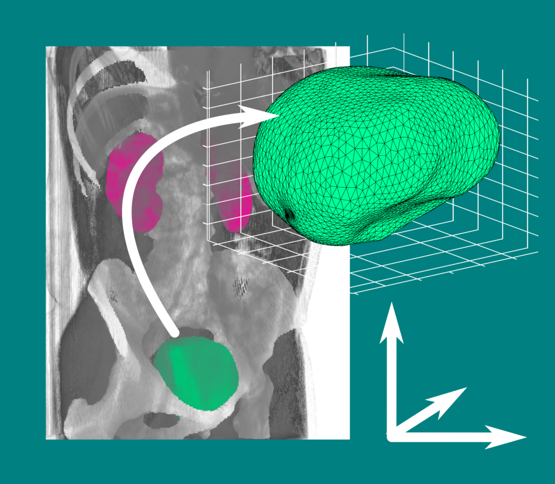 FEM model of the bladder, based on MRI scans.