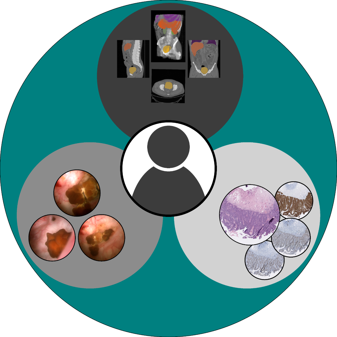 Multimodal database of urothelial carcinoma. Various clinically relevant diagnostic methods are combined, especially endoscopic video sequences and histopathological sections stained with different immunohistochemical methods.