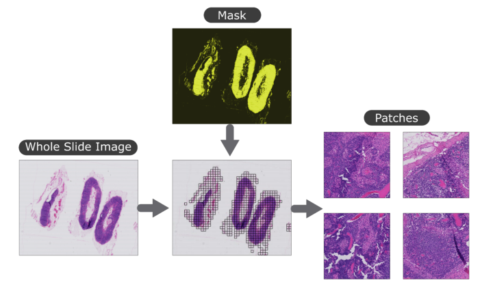 Patch-extraction of histopathological whole slide images.