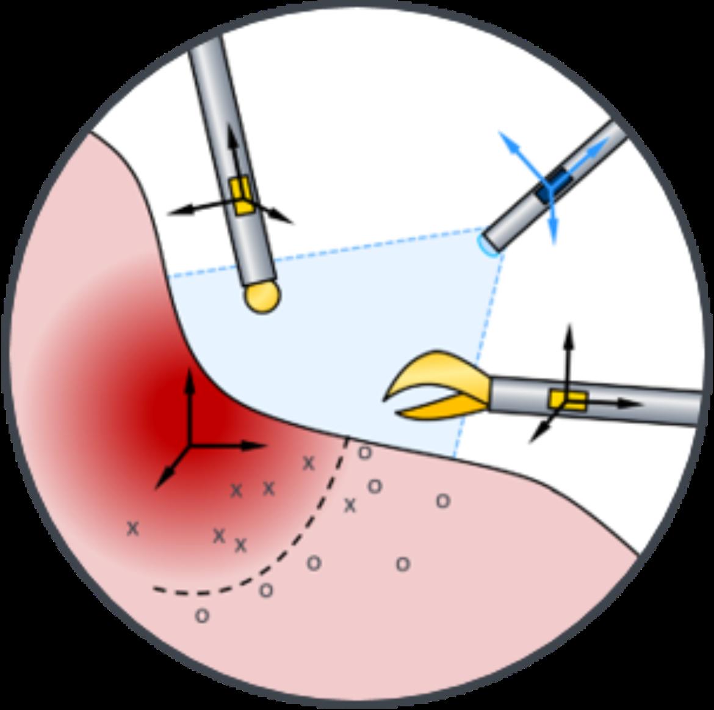 Klassifikation von Gewebe mittels Sensorfusion