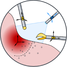 Intraoperative navigation of instruments and sensors to the target tissue.